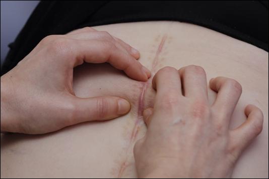 aderenze cicatriziali